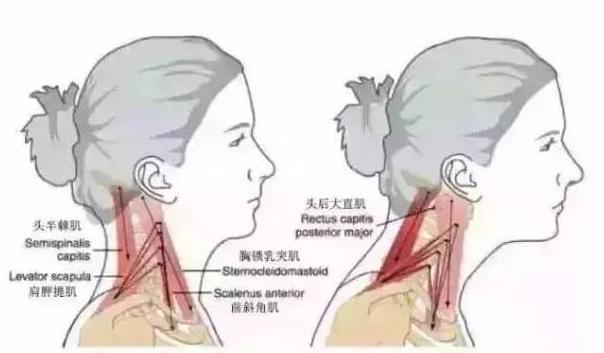 看看你有多少相似的地方,在第几级? 一级:脖子酸痛、僵硬(建议抬头看看天花板,脖子后面是否有感觉) 二级:脖子、肩膀、后背酸痛,僵硬、面色晦暗 三级:有倦容、抵抗力差、易过敏、易留色素印、长斑 四级:胳膊不得劲,疼痛,麻木(从这一级开始基本得去医院了) 五级:面部光泽、肤色不均、皮肤松弛与实际年龄不符。 六级:经常睡觉落枕(落枕是一种轻型颈椎病) 七级:走路发飘,跑偏、写字不稳(从这级开始要做手术了) 八级:走路像踩在棉花上,一脚深、一脚浅 九级:小便、大便、性功能出现难言之隐(从这级开始做手术效果也不